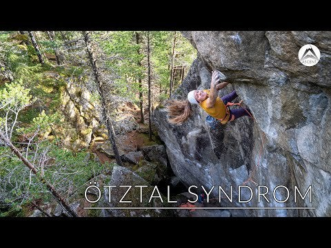ötztal syndrome